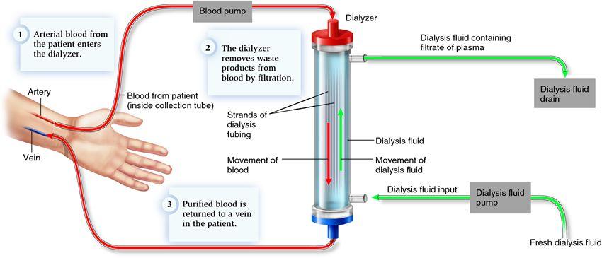 Hemodialysis Process - Dr  Satish